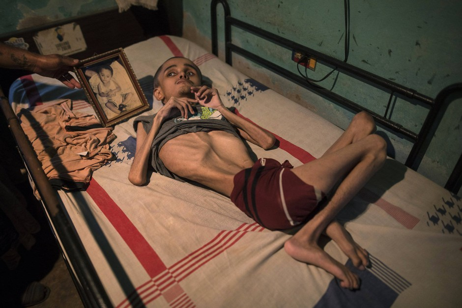 Miguel Blanco, 28 Jahre alt, ist mit einem Wasserkopf (Hydrocephalus) geboren. Er lebt bei seiner arbeitslosen Mutter, die sich für ihn nur eine Mahlzeit am Tag leisten kann. Sein Bruder zeigt ein Foto, auf dem Miguel noch ein Kind war.
