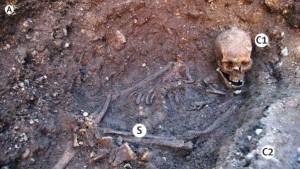 Richard III. war von Spulwürmern befallen