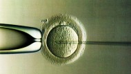 Genreparatur im Zuge der künstlichen Befruchtung: Eine Option für die Behandlung schwerer familiärer Leiden?