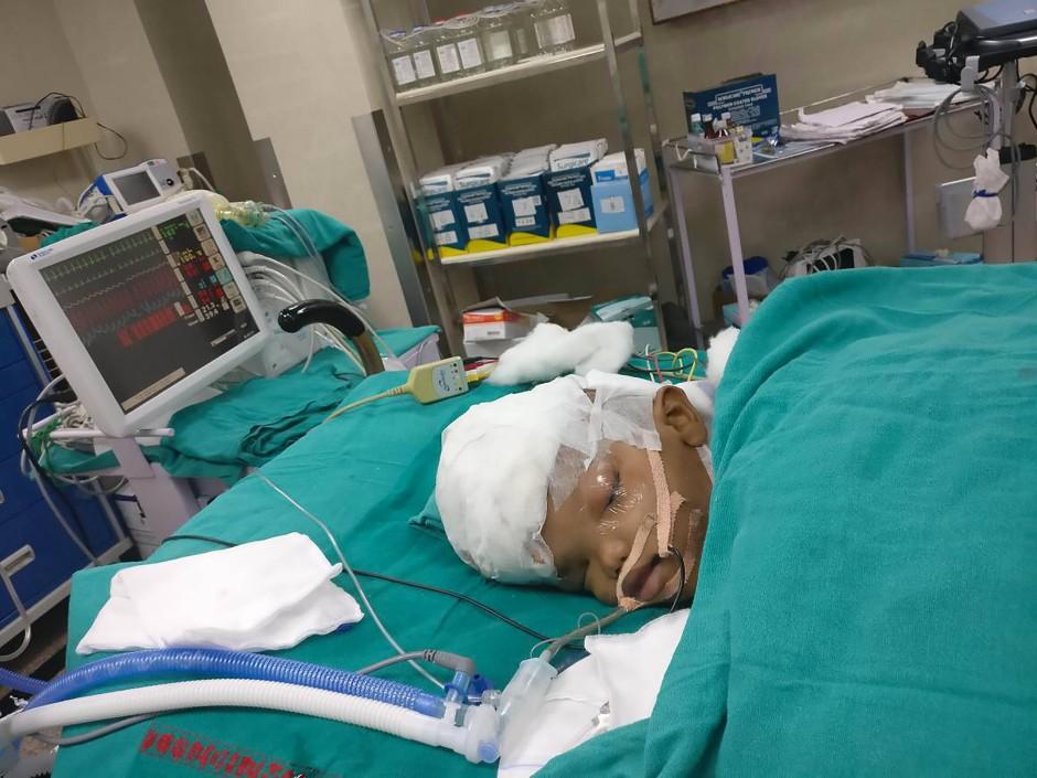 Einer der Zwillinge nach der geglückten Operation