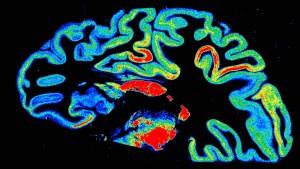 1,7 Milliarden Nervenzellen des Hirns simuliert