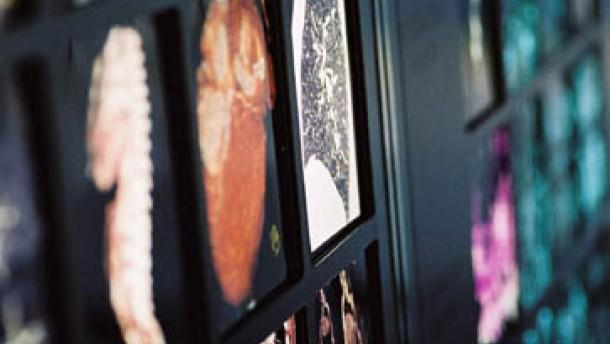 Vier Forscherteams rangen um den Deutschen Zukunftspreis 2002