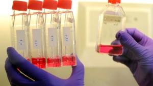 Längere Ferien wegen Schweinegrippe?