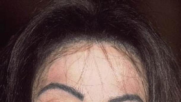 Afrikanerinnen vergiften sich selbst mit Hautbleichmitteln