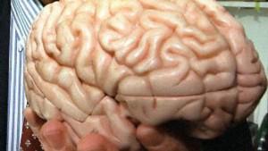 Stillstand im Gehirn durch Viren