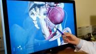 Zu wenige Patienten erklärten sich bereit, an der Studie zu Prostatakrebs mitzuwirken.
