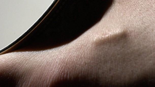 Schwedische Arbeitnehmer lassen sich Chip implantieren - freiwillig