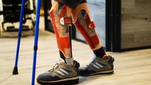 Prothesen für den selbstbewussten Auftritt