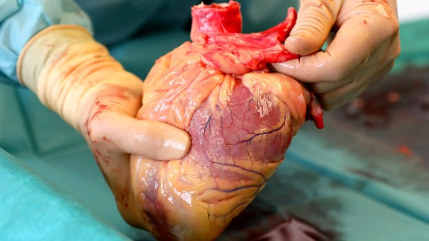 Warum die Zahl der Organspender zugenommen hat