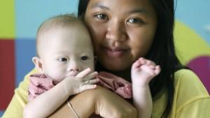 Eltern und Leihmutter streiten über Baby Gammy