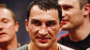 Jetzt sehe ich wie ein Boxer aus