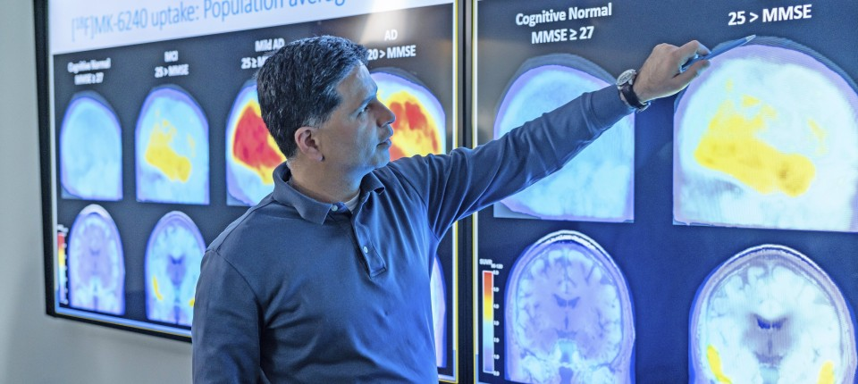 Das Medikament Aduhelm reduziert die für Alzheimer-Demenz typischen Proteinablagerungen im Gehirn.  Doch hilft es den Kranken im Alltag?