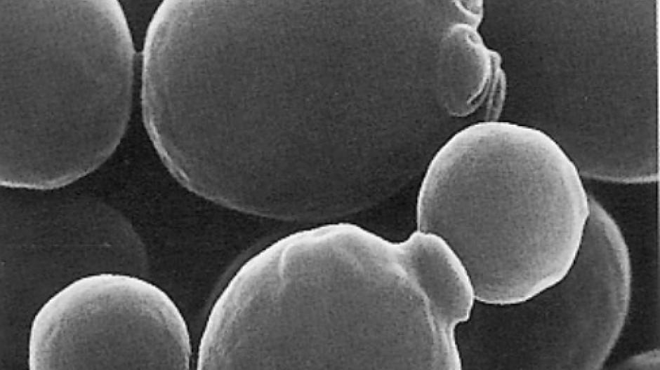 Elektronenmikroskopische Aufnahme von Saccharomyces cerevisiae, auch Bier- und Backhefe genannt