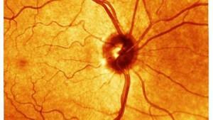 Können Genschnipsel vor Blindheit schützen?