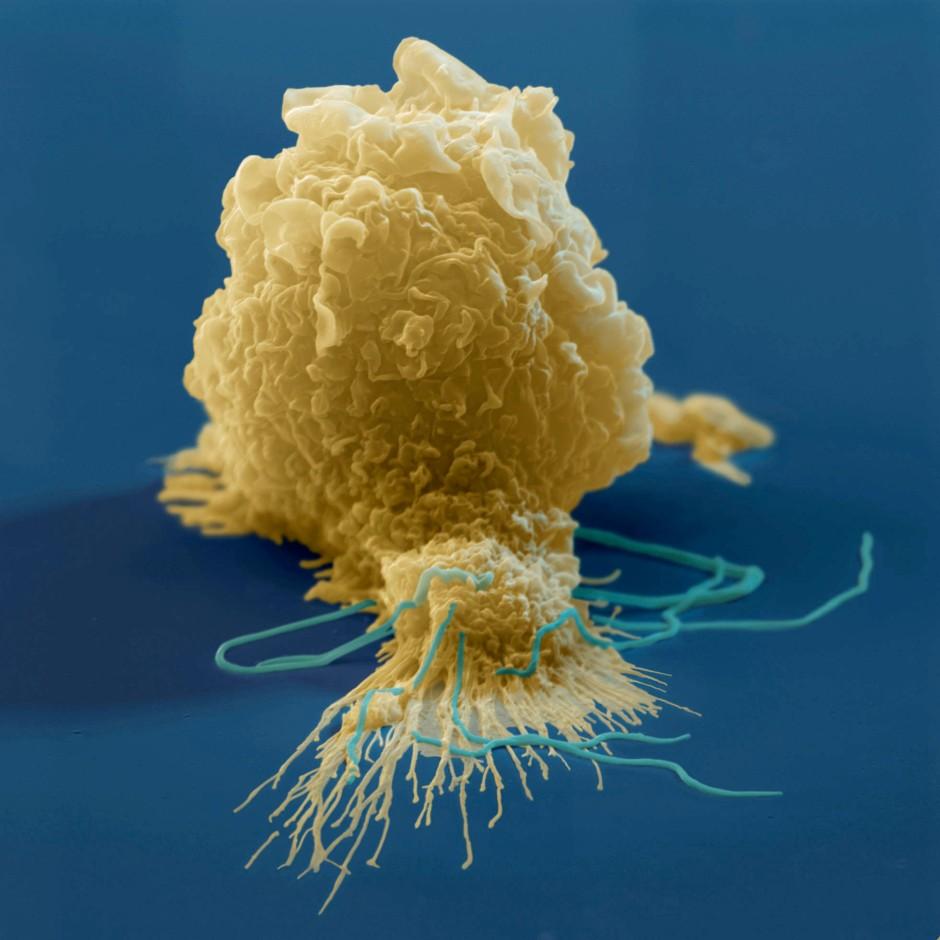 Menschlicher Makrophage: Solche Immunzellen sind mit die ersten, die auf die Sars-CoV-2-Infektion reagieren, und sie setzen einen unheilvolles Immunchaos in Gang.