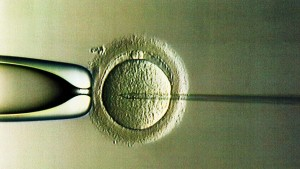Ist das Y-Chromosom überflüssig?