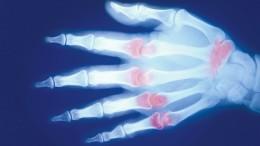 Schmerzhafte Lektion für Rheumapatienten
