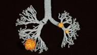 Die Ärztin Katharina Sabernig von der Medizinischen Universität Wien hat das Sars-CoV-2-Virus in der Lunge gestrickt.