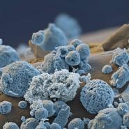 Unkontrolliert wachsende Lithiumkristalle stellen für Lithium-Akkus ein ernstes Sicherheitsproblem dar.
