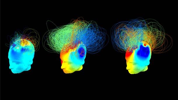 """Bewusstsein im Gehirn """"versteckt"""""""
