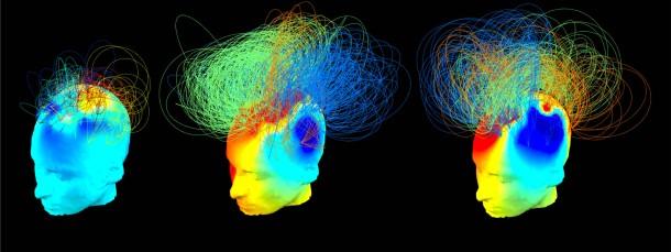 Im Computerbild lassen sich die aktiven Netzwerk-Verbindungen im Großhirn darstellen. Links außen ein nahezu komplett bewusstloser Komapatient, in der Mitte ein Patient, der offenbar sogar wahrnehmen (aber nicht kommunizieren) kann, rechts ein gesunder Proband.