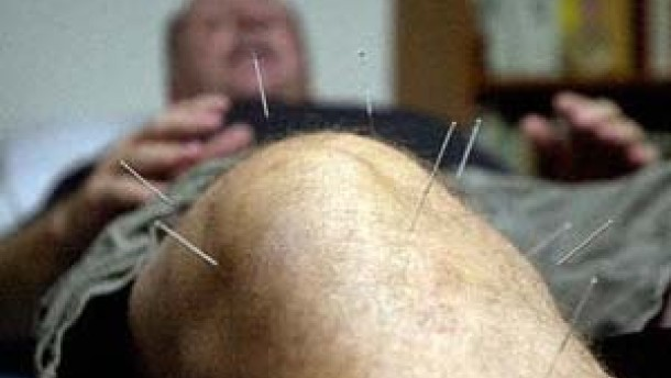 Wirksame Akupunktur bei Kniegelenk-Arthrose