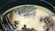 Multiresistente Enterobakterien in der Petrischale: Multi heißt: Viele Antibiotika wirken nicht mehr gegen die Krankheitserreger.