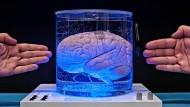 Zugriff zum Gehirn.