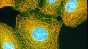 Magisches Geschoß soll Krebszellen treffen