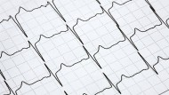 Im EKG erkennt man ein Vorhofflimmern anhand der unregelmäßigen Abstände der Signale.
