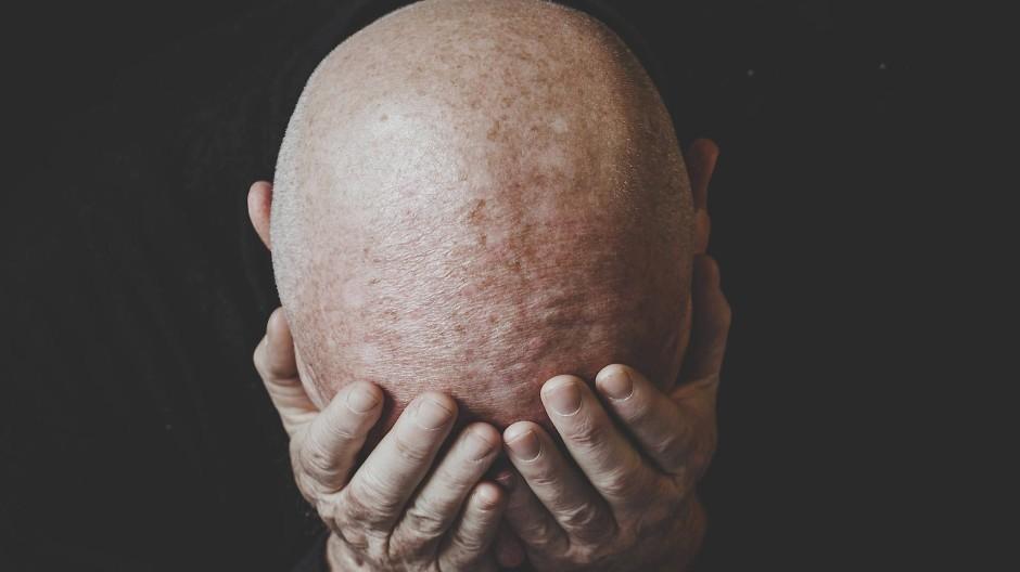 Vorbei ist nicht vorbei: Viele Covid-19-Opfer bleiben verzweifelt zurück und viele fern der Arbeit, weil sie eine quälende Erschöpfung nicht überwinden können.
