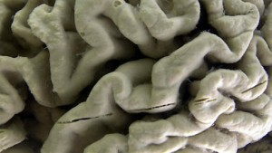 Demenz durch verengte Blutgefäße
