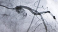 Wenn die Aorta verhärtet