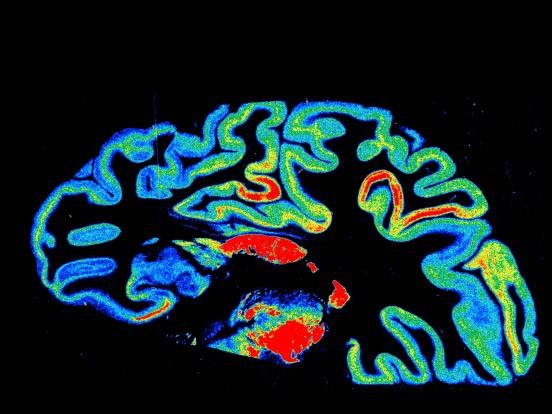Bilderflut aus dem Gehirn: Mit solchen digitalisierten Autoradiogrammen haben deutsche Wissenschaftler jetzt einen dreidimensionalen Hirnatlas erzeugt