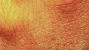 Ein genetischer Schlüsselfaktor für Neurodermitis