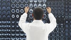 Sind Algorithmen tatsächlich die besseren Ärzte?
