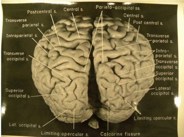 """Bildergalerie: """"Schon sehr ungewöhnlich"""": Einsteins Gehirn - Bild 2 ..."""