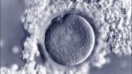 Eine Eizelle mit den sie umgebenden Follikelzellen vor der Befruchtung.