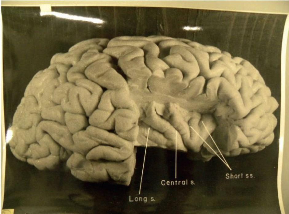 """Das aufgeschnittene Gehirn: Blick in die nach innen gestülpten Hirnrinden-Lappen, die """"Insularrinde""""."""