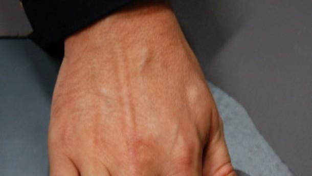 Freiwilliger Fingerabdruck gangbarer Weg