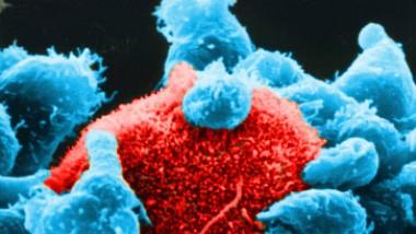Mehrere natürliche Killerzellen haben sich an die Oberfläche einer Tumorzelle angelagert