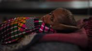 40 Millionen Kinder in Indien unterernährt