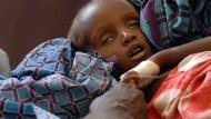 Unterernährtes Kind in Mogadischu